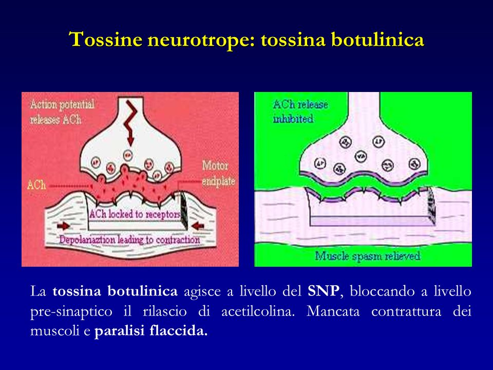 Tossine neurotrope: tossina botulinica