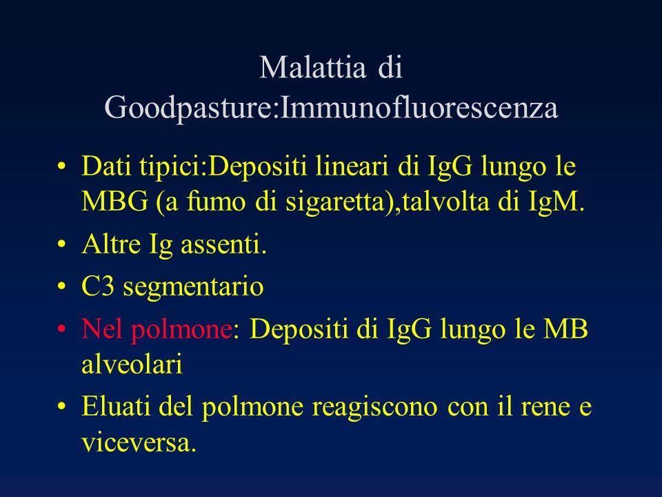 Malattia di Goodpasture:Immunofluorescenza