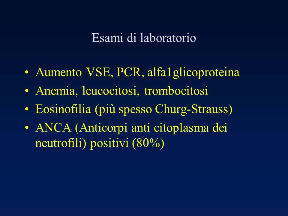 Esami di laboratorio Aumento VSE, PCR, alfa1glicoproteina. Anemia, leucocitosi, trombocitosi. Eosinofilia (più spesso Churg-Strauss)