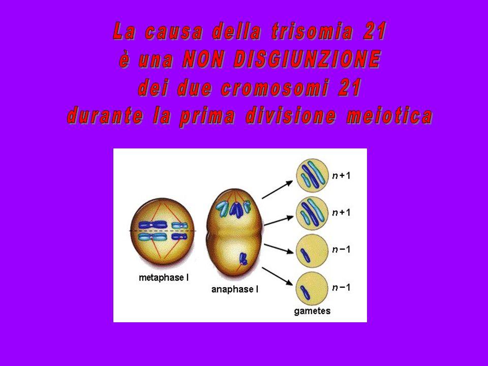 La causa della trisomia 21 è una NON DISGIUNZIONE dei due cromosomi 21