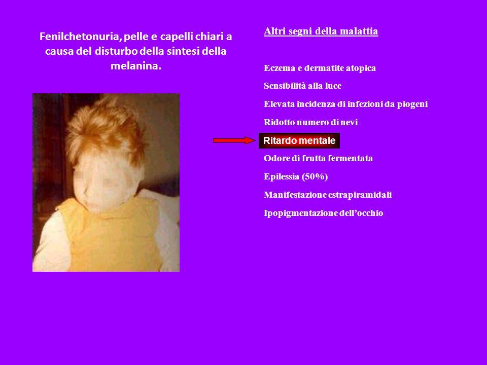 Fenilchetonuria, pelle e capelli chiari a causa del disturbo della sintesi della melanina.