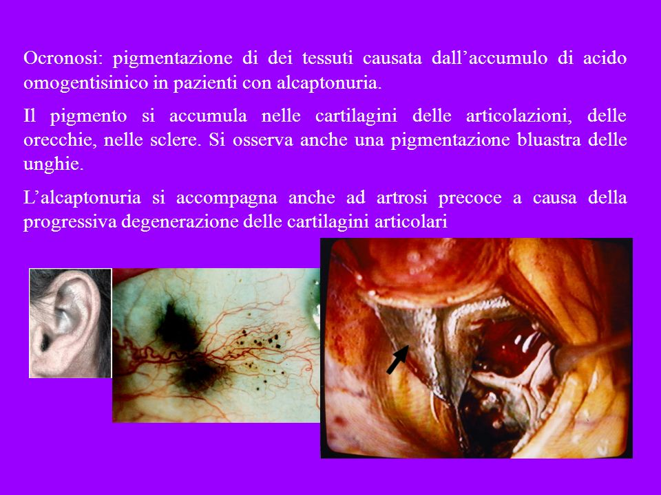 Ocronosi: pigmentazione di dei tessuti causata dall'accumulo di acido omogentisinico in pazienti con alcaptonuria.