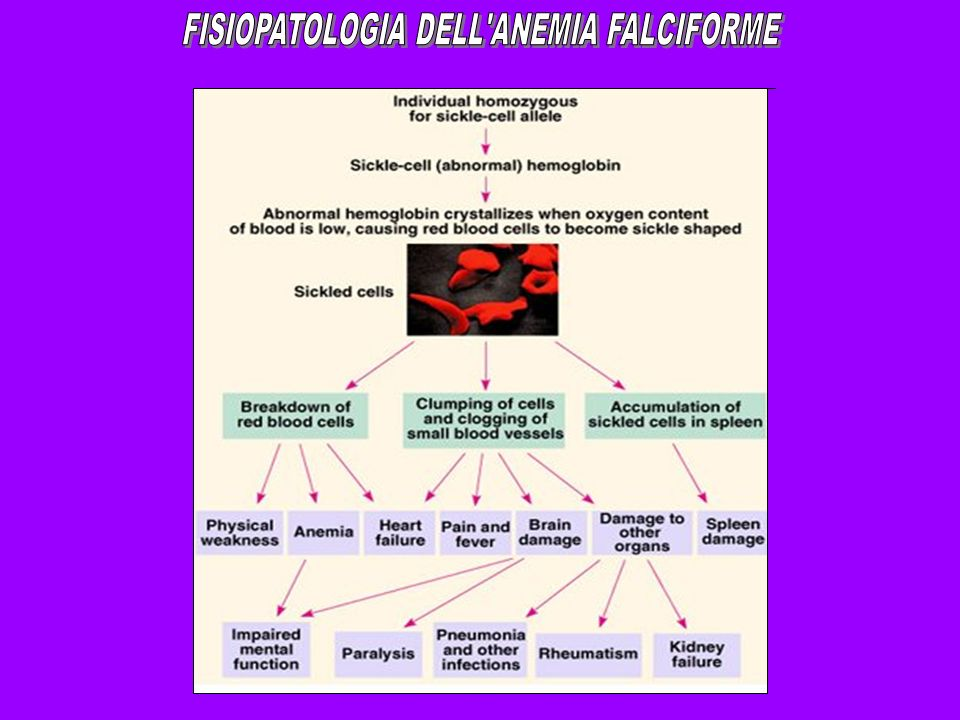 FISIOPATOLOGIA DELL ANEMIA FALCIFORME