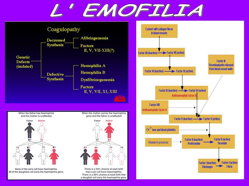 L EMOFILIA