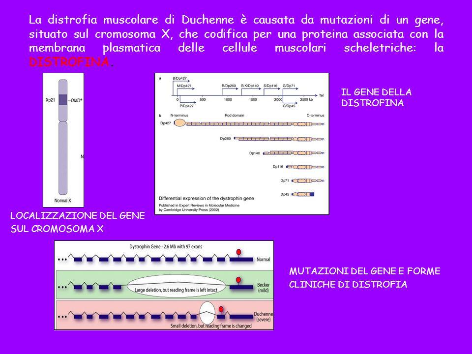 La distrofia muscolare di Duchenne è causata da mutazioni di un gene, situato sul cromosoma X, che codifica per una proteina associata con la membrana plasmatica delle cellule muscolari scheletriche: la DISTROFINA.
