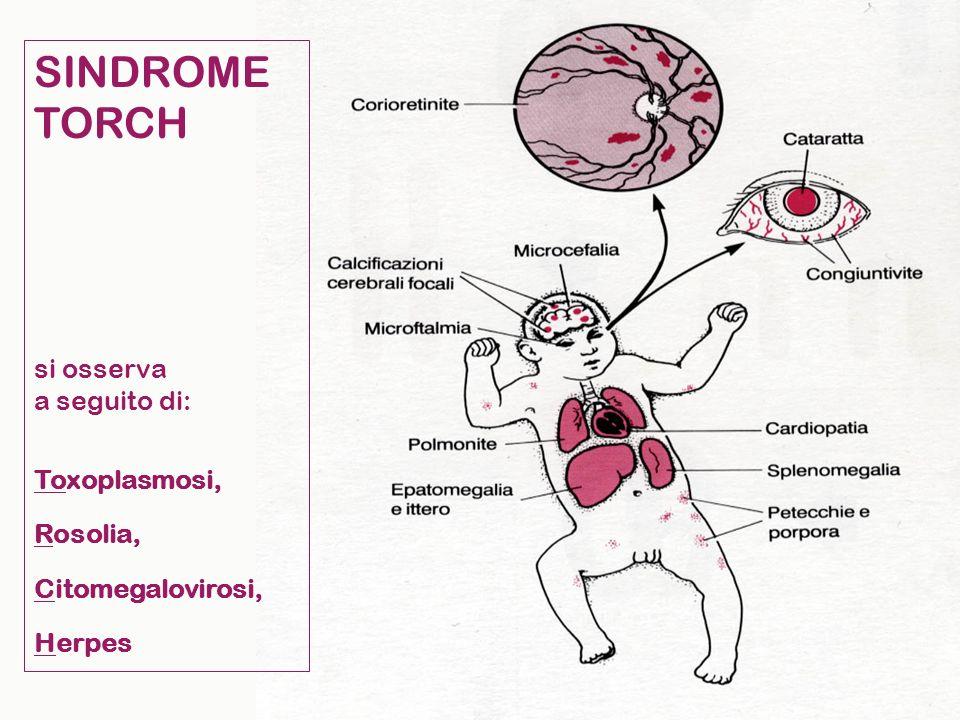 SINDROME TORCH si osserva a seguito di: Toxoplasmosi, Rosolia,