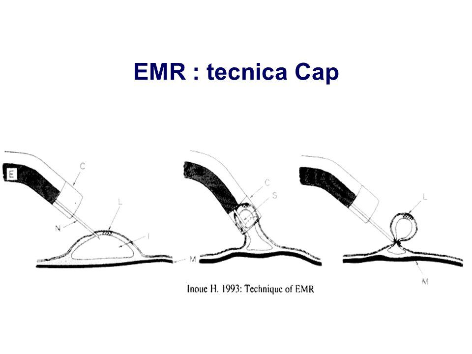 EMR : tecnica Cap