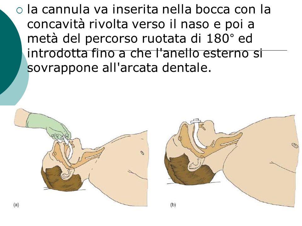 la cannula va inserita nella bocca con la concavità rivolta verso il naso e poi a metà del percorso ruotata di 180° ed introdotta fino a che l anello esterno si sovrappone all arcata dentale.