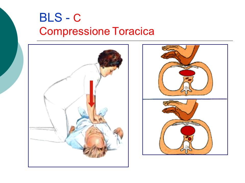 BLS - C Compressione Toracica