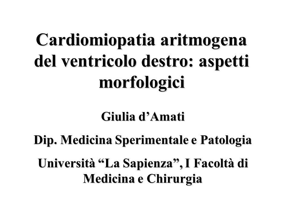Cardiomiopatia aritmogena del ventricolo destro: aspetti morfologici