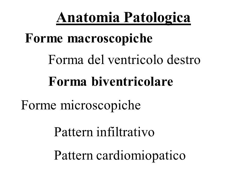 Anatomia Patologica Forme macroscopiche Forma del ventricolo destro