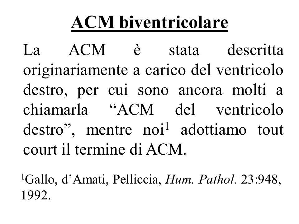 ACM biventricolare