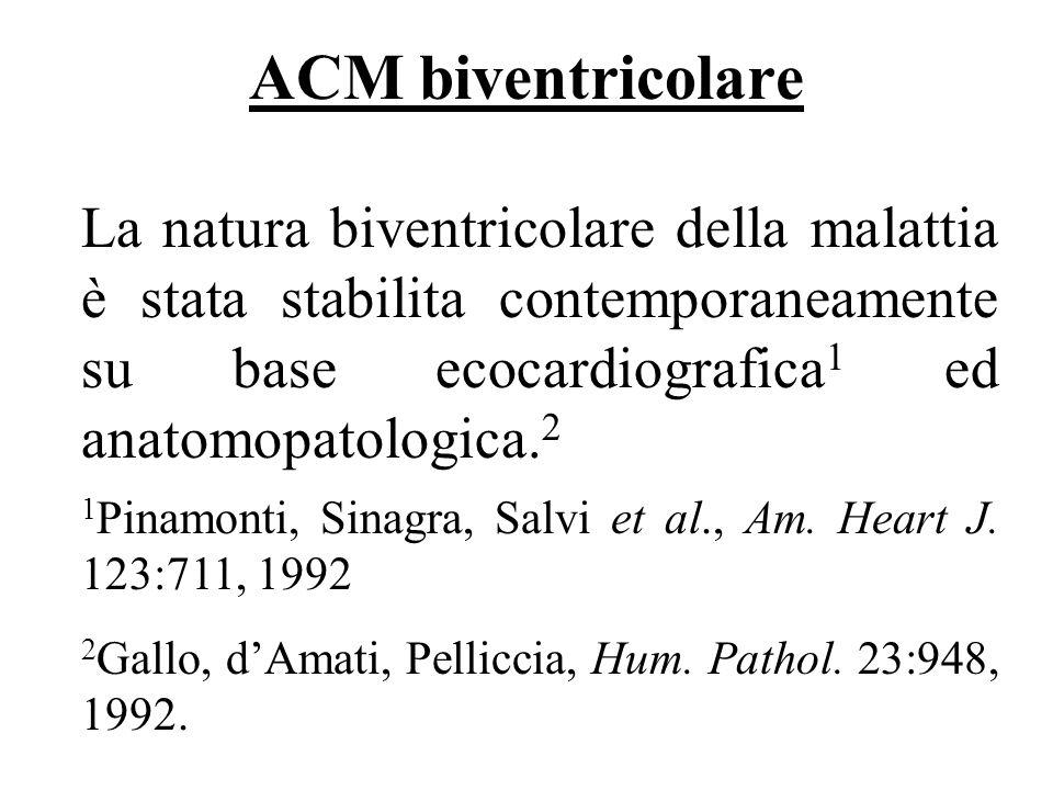 ACM biventricolare La natura biventricolare della malattia è stata stabilita contemporaneamente su base ecocardiografica1 ed anatomopatologica.2.