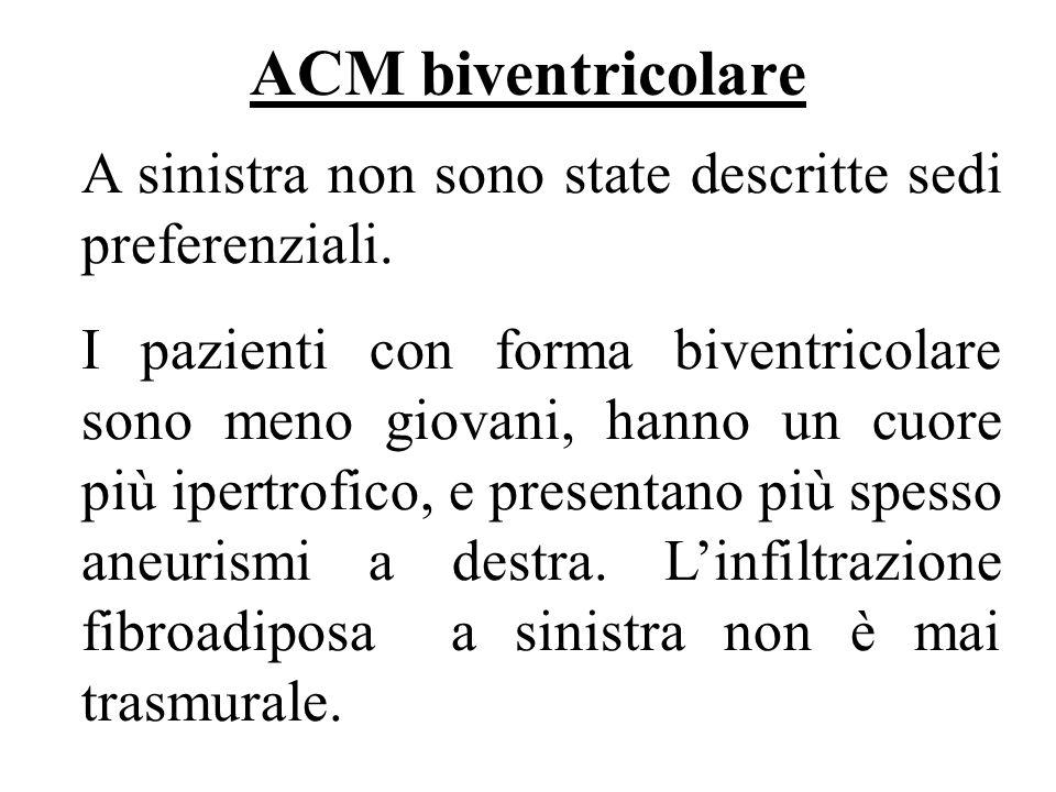 ACM biventricolare A sinistra non sono state descritte sedi preferenziali.