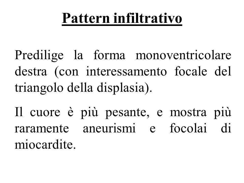 Pattern infiltrativo Predilige la forma monoventricolare destra (con interessamento focale del triangolo della displasia).