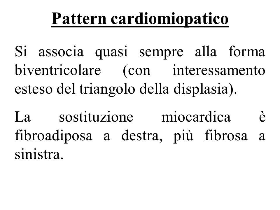 Pattern cardiomiopatico