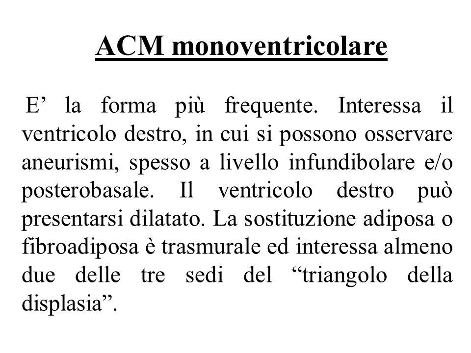 ACM monoventricolare
