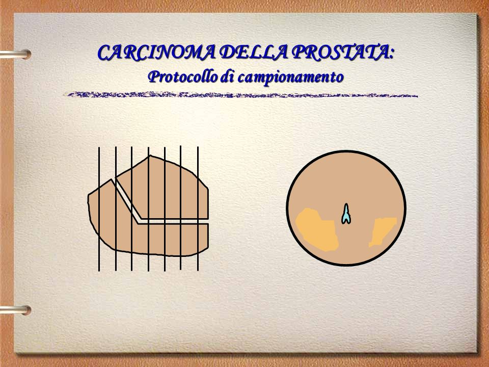 CARCINOMA DELLA PROSTATA: Protocollo di campionamento