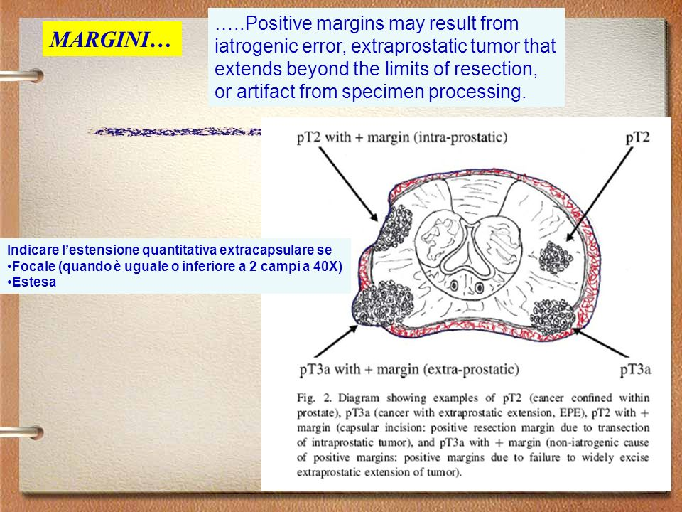 …..Positive margins may result from iatrogenic error, extraprostatic tumor that extends beyond the limits of resection, or artifact from specimen processing.