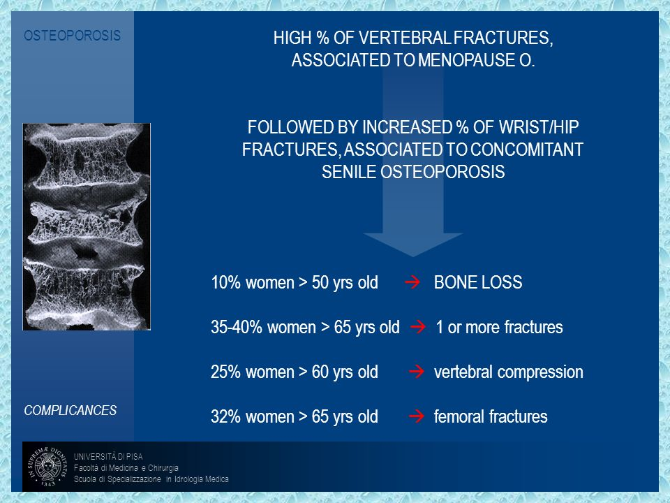 HIGH % OF VERTEBRAL FRACTURES, ASSOCIATED TO MENOPAUSE O.