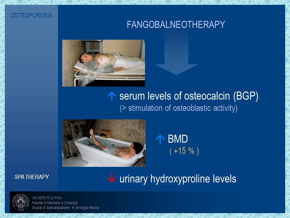  serum levels of osteocalcin (BGP)