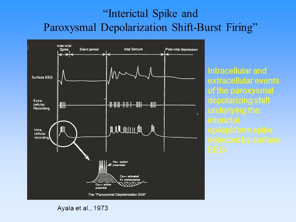 Interictal Spike and Paroxysmal Depolarization Shift-Burst Firing