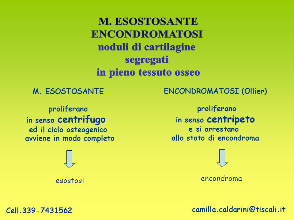 M. ESOSTOSANTE ENCONDROMATOSI noduli di cartilagine segregati