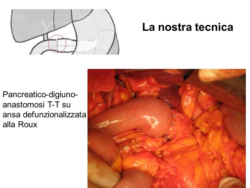 La nostra tecnica Pancreatico-digiuno- anastomosi T-T su