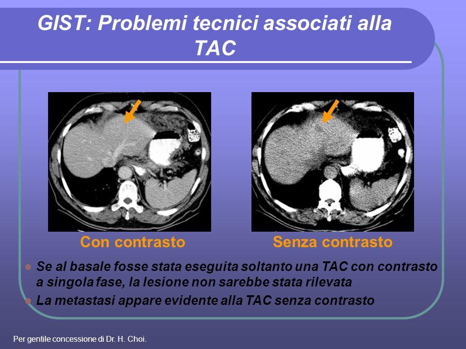 GIST: Problemi tecnici associati alla TAC