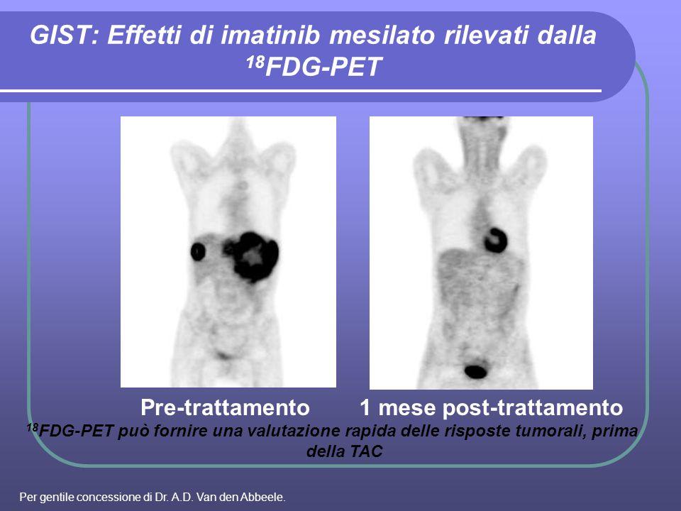 GIST: Effetti di imatinib mesilato rilevati dalla 18FDG-PET