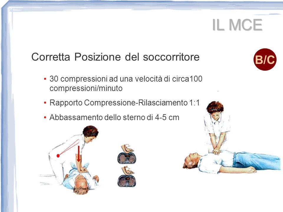 IL MCE B/C Corretta Posizione del soccorritore