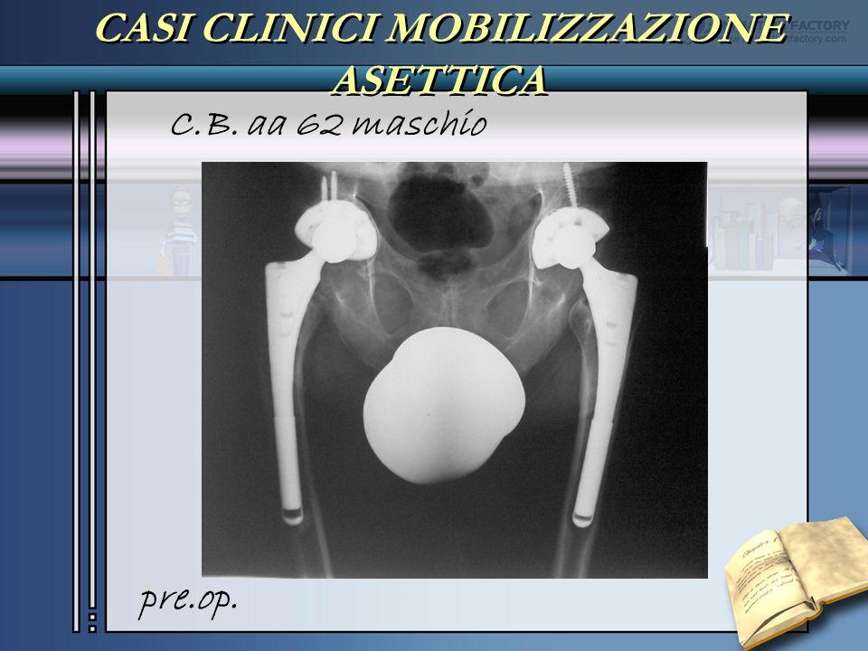 CASI CLINICI MOBILIZZAZIONE ASETTICA