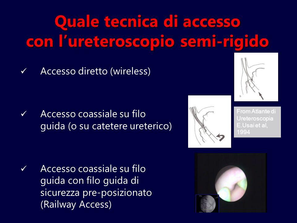 Quale tecnica di accesso con l'ureteroscopio semi-rigido