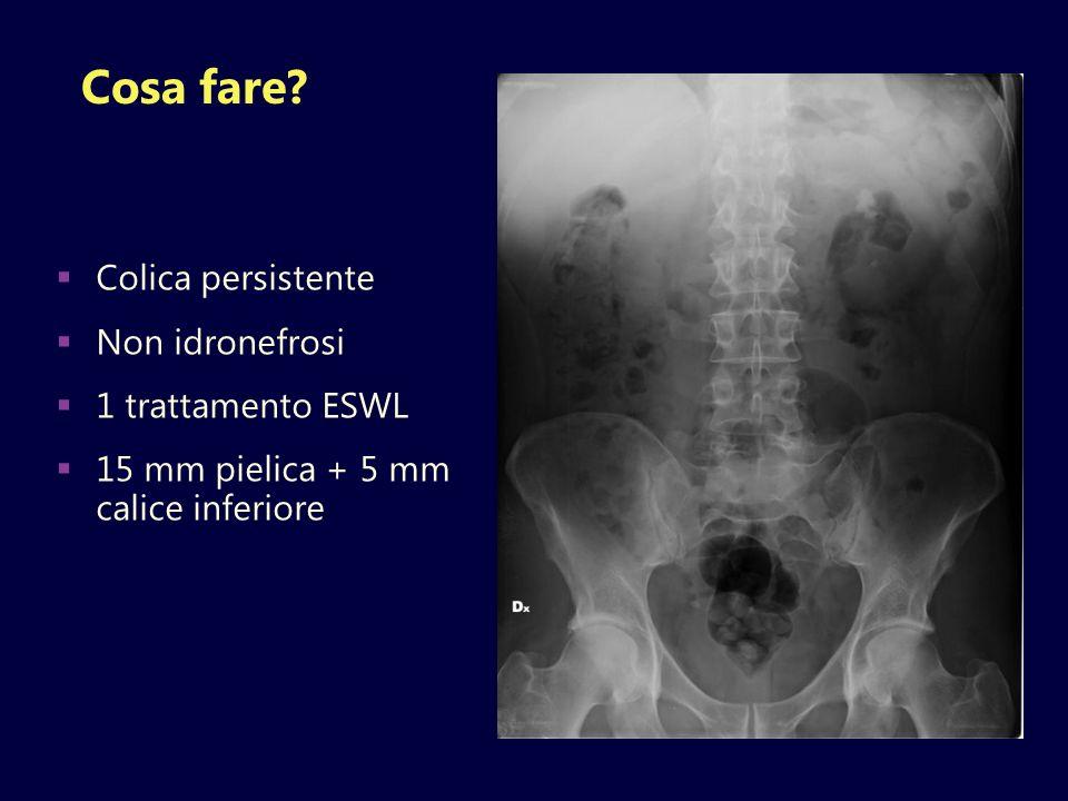 Cosa fare Colica persistente Non idronefrosi 1 trattamento ESWL