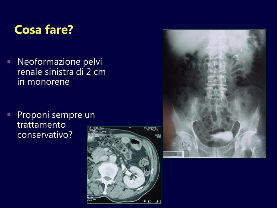 Cosa fare Neoformazione pelvi renale sinistra di 2 cm in monorene