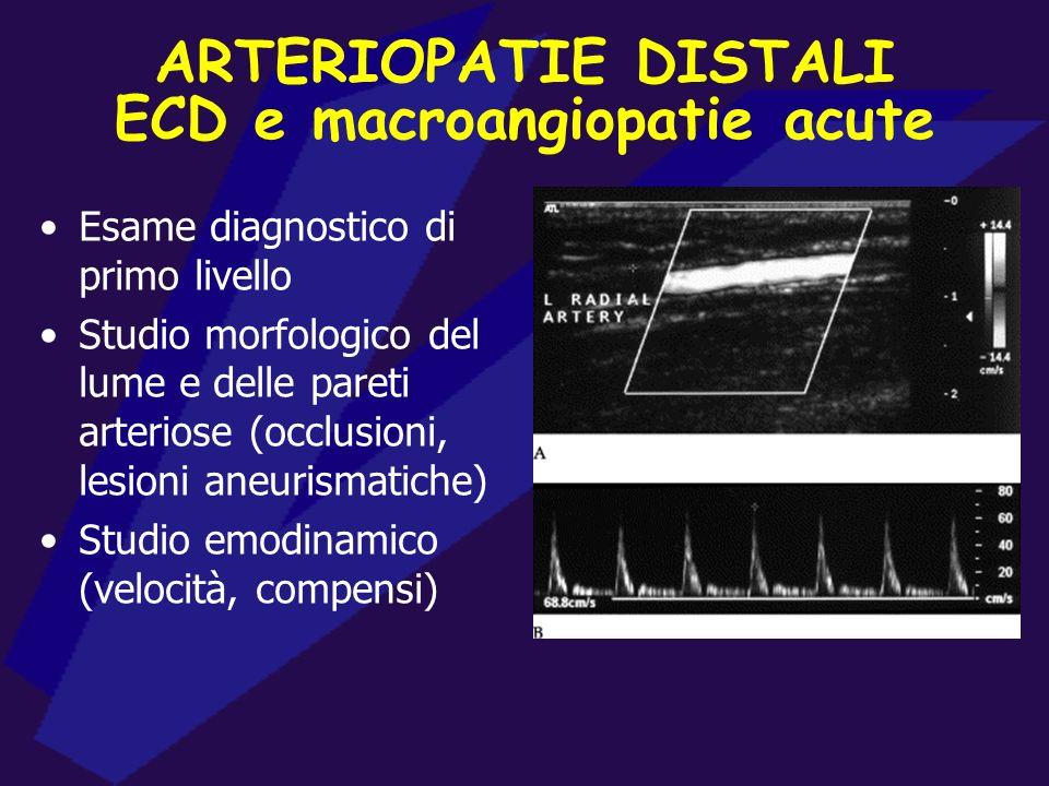 ECD e macroangiopatie acute