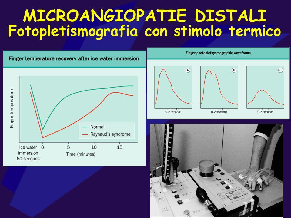MICROANGIOPATIE DISTALI Fotopletismografia con stimolo termico