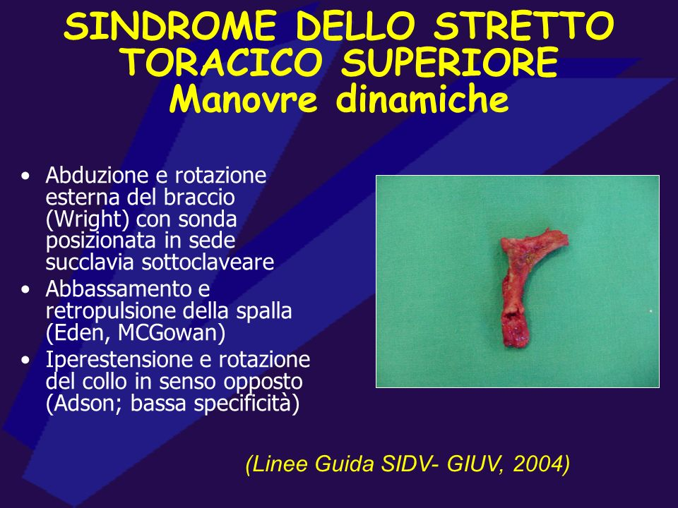 SINDROME DELLO STRETTO TORACICO SUPERIORE
