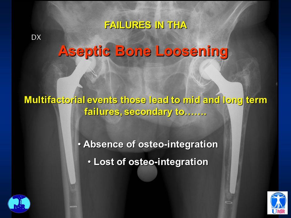 Aseptic Bone Loosening Aseptic Bone Loosening