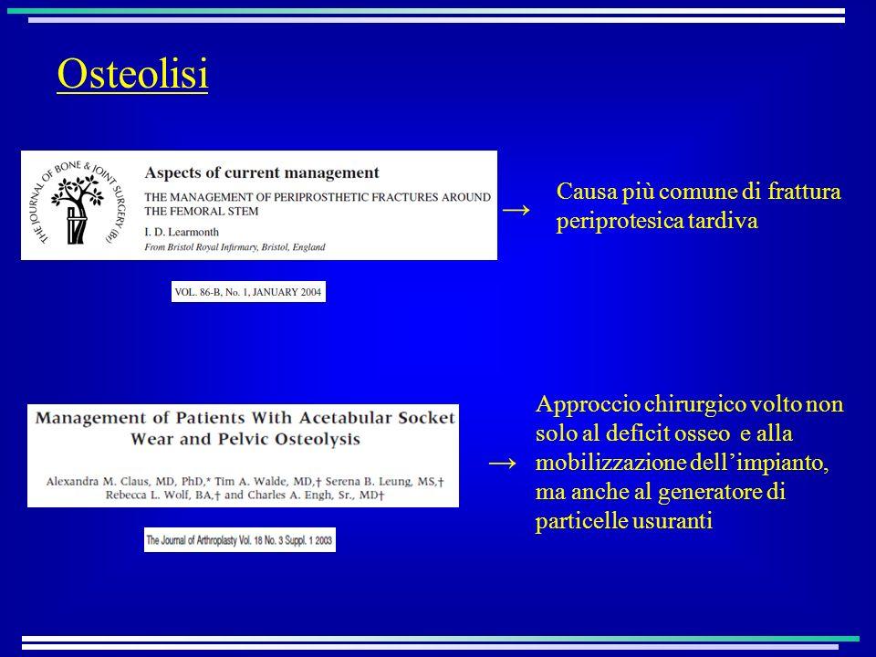 Osteolisi → → Causa più comune di frattura periprotesica tardiva