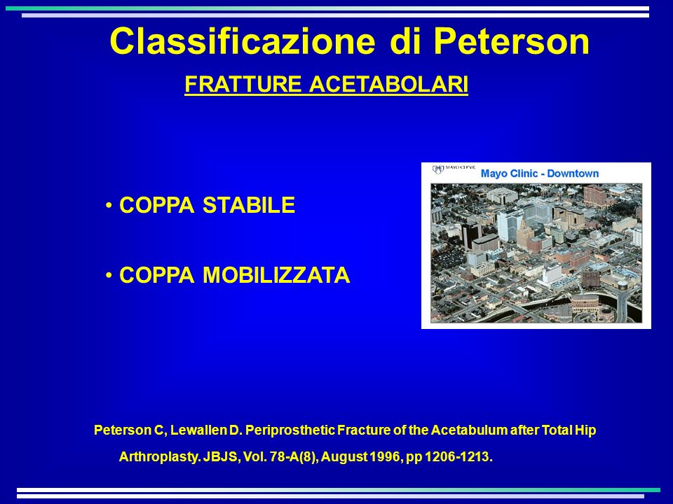Classificazione di Peterson