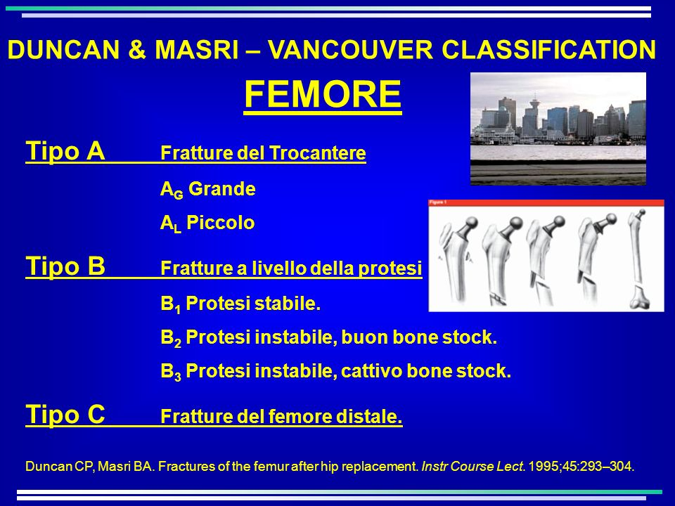 FEMORE DUNCAN & MASRI – VANCOUVER CLASSIFICATION