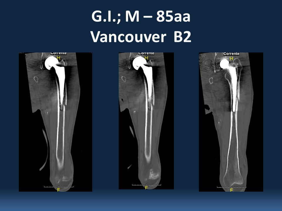 G.I.; M – 85aa Vancouver B2