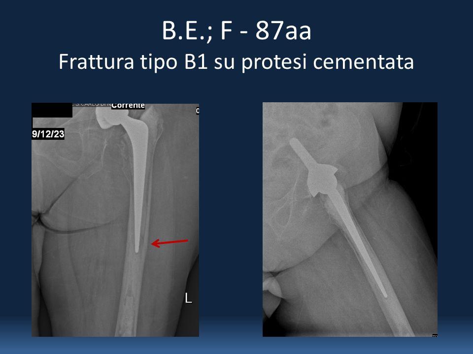 B.E.; F - 87aa Frattura tipo B1 su protesi cementata