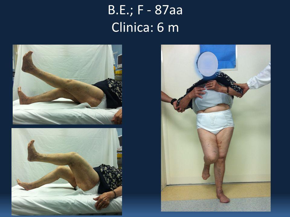 B.E.; F - 87aa Clinica: 6 m