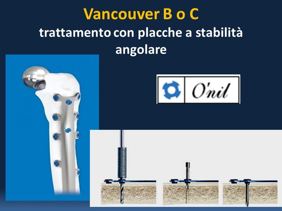 Vancouver B o C trattamento con placche a stabilità angolare