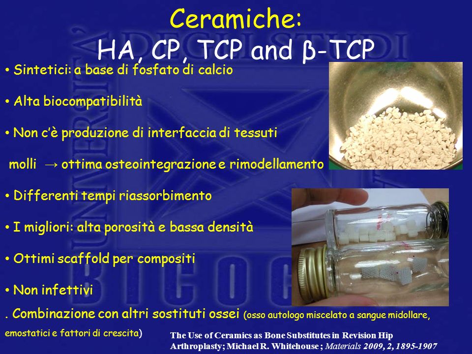 Ceramiche: HA, CP, TCP and β-TCP
