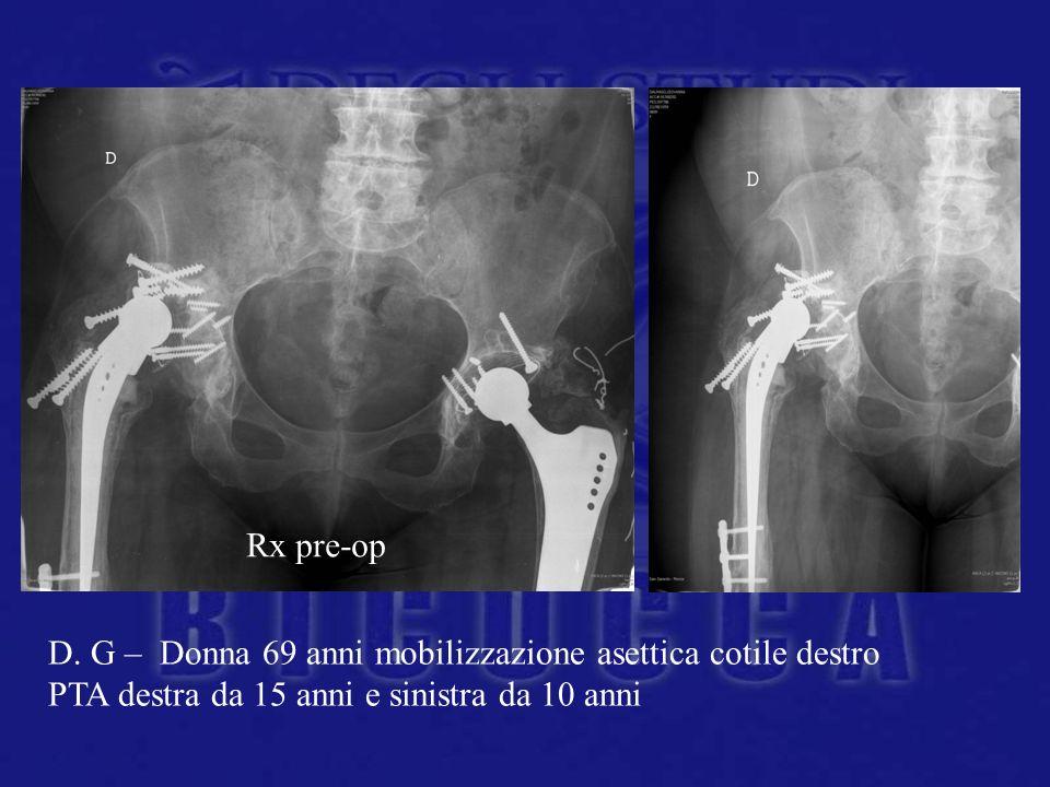 Rx pre-op D. G – Donna 69 anni mobilizzazione asettica cotile destro.