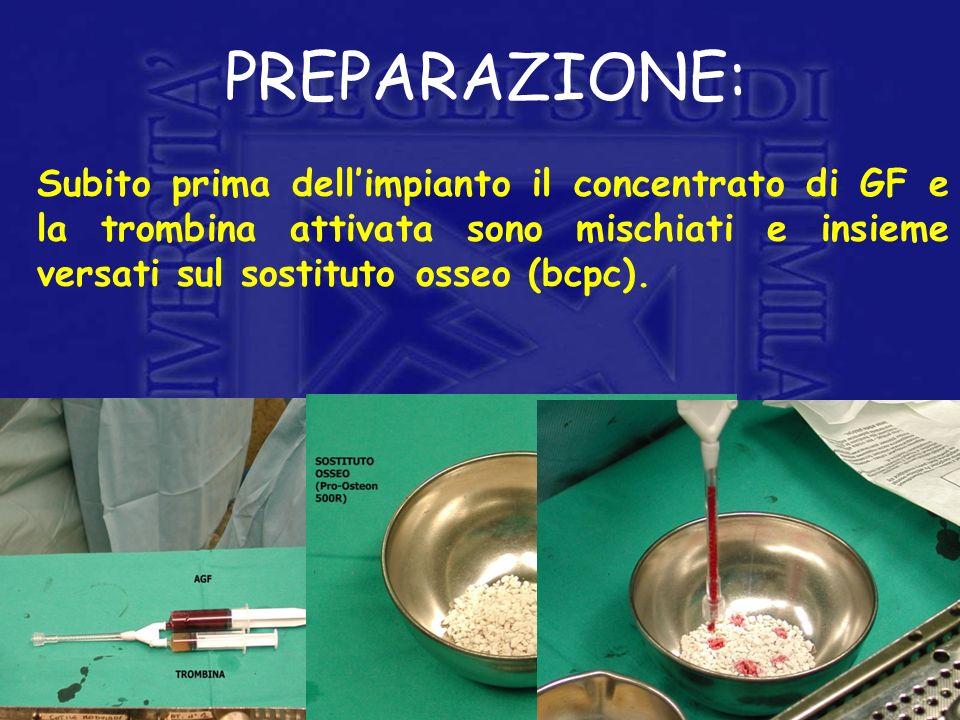 PREPARAZIONE:Subito prima dell'impianto il concentrato di GF e la trombina attivata sono mischiati e insieme versati sul sostituto osseo (bcpc).