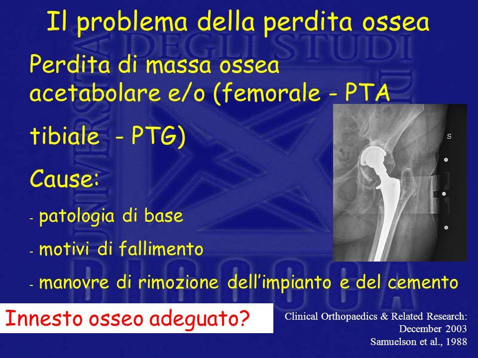 Il problema della perdita ossea